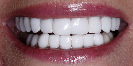 Replacing Old Veneers